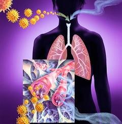 Эмфизема легких: симптоматика, причины, лечение
