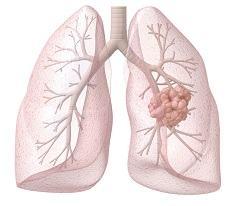 Лечение проявлений кандидоза легких