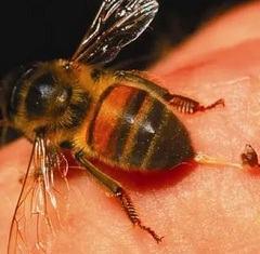 Укусы пчел: принципы терапии, диагностических методик
