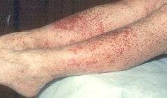 Лечение, диагностика, профилактика васкулита