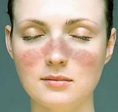 Фотосенсибилизация: какие болезни вызывает, методы лечения