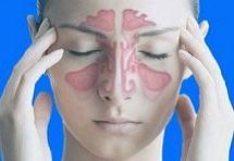 Аллергический риносинусит - современное лечение, профилактика заболевания