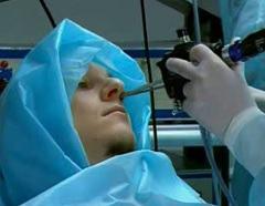 Риноскопия - метод диагностики хронического гайморита