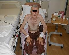 Эмфизема легких: формы, клинические симптомы