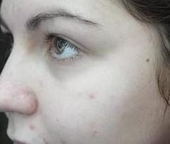 Бледность кожи как причина анемии
