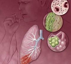 Осложнения очаговой пневмонии