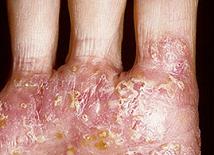 Дисгидроз: профилактика и лечение заболевания