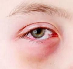Из-за каких причин возникает аллергический конъюнктивит