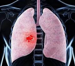 Как для диагностики очаговой пневмонии помогаю проявления болезни