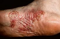 Дисгидроз - причины и симптомы болезни