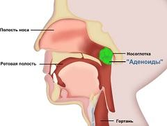 Аденоиды: методы лечения заболевания