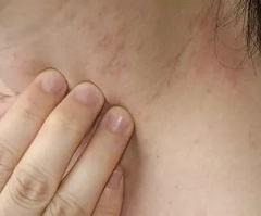 Симптоматика на коже нейродермита