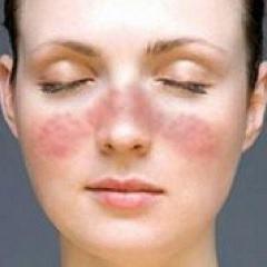 Этиологические причины васкулита кожи
