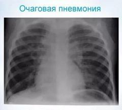 Информативность рентгенологической диагностики при очаговой пневмонии