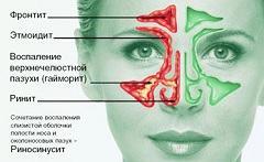 Острый этмоидит: современные методы диагностики