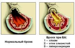 Научные подходы изучения Бронхиальной астмы