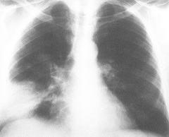 Диагностика, симптомы кандидоза легких
