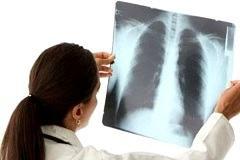 Причины очаговой пневмонии